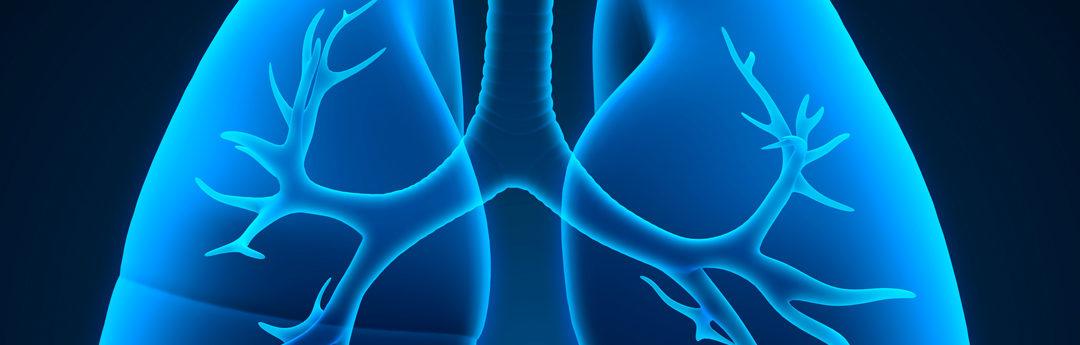 Oxygénation par membrane extracorporelle (ECMO) pour le syndrome de détresse respiratoire aiguë lié à la COVID-19