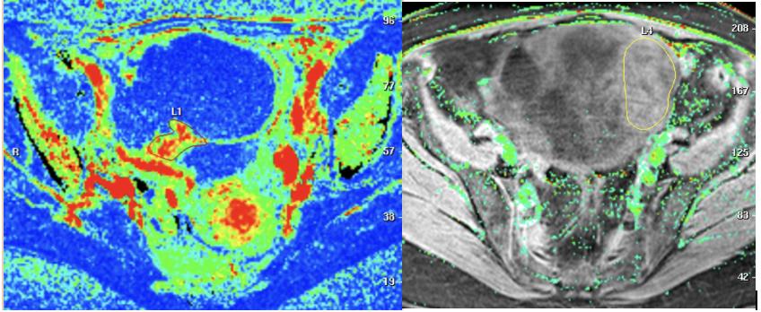 Une étude multicentrique européenne montre une sensibilité et une spécificité de l'IRM de plus de 90% pour prédire un cancer de l'ovaire