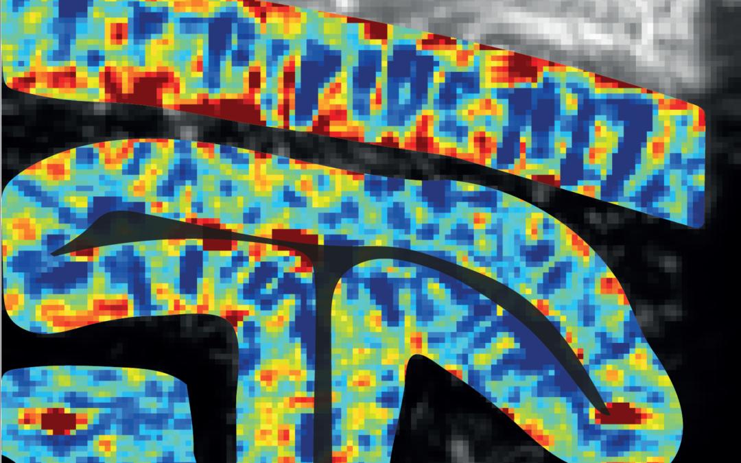 L'imagerie ultrasonore pour résoudre le fonctionnement du cortex visuel