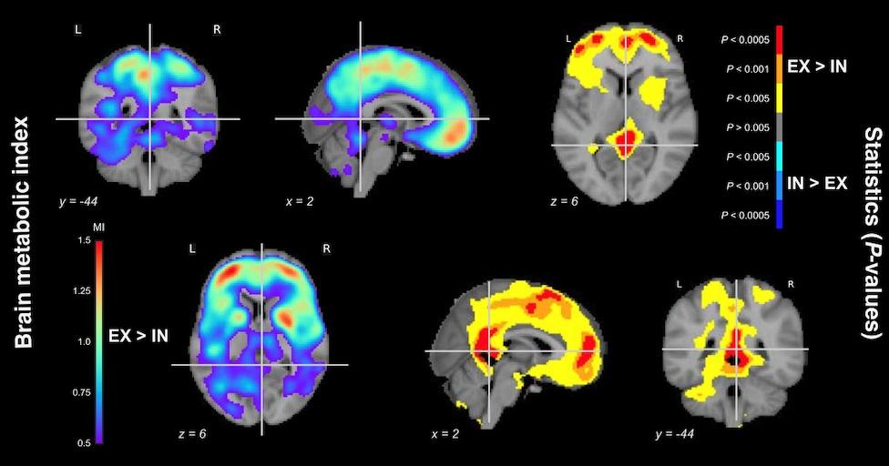 Troubles de la conscience : deux nouvelles découvertes fondamentales pour le diagnostic et le traitement des patients